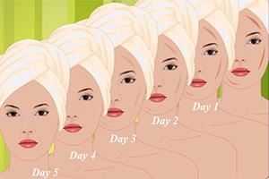 面部疤痕自然护理